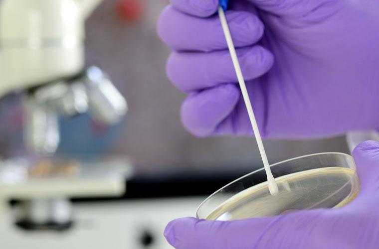 Untersuchung auf Bakterien laut HACCP - AS Umwelthygiene